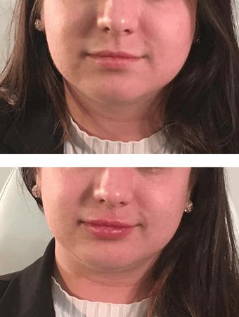 facial fillers, Facial Fillers in Eugene Oregon