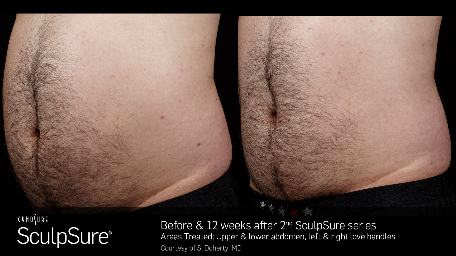 , SculpSure Body Fat Reduction
